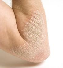 eczema-istockphoto-550lmb891712
