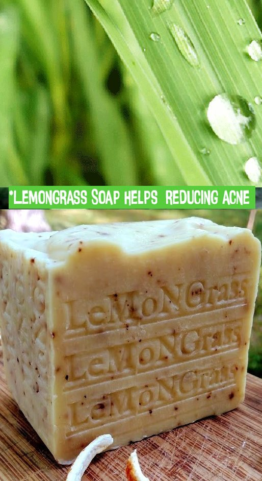 Lemongrass soap acts as a toner that helps in toning the muscles and tissues thereby providing a clear skin.